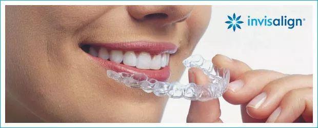笑口常开,好彩自然来——美国牙齿正畸指南。